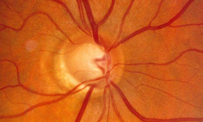 Γλαυκωμα οφθαλμίατρος