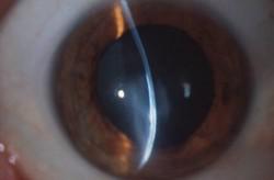 keratoeidis ophthalmiatros